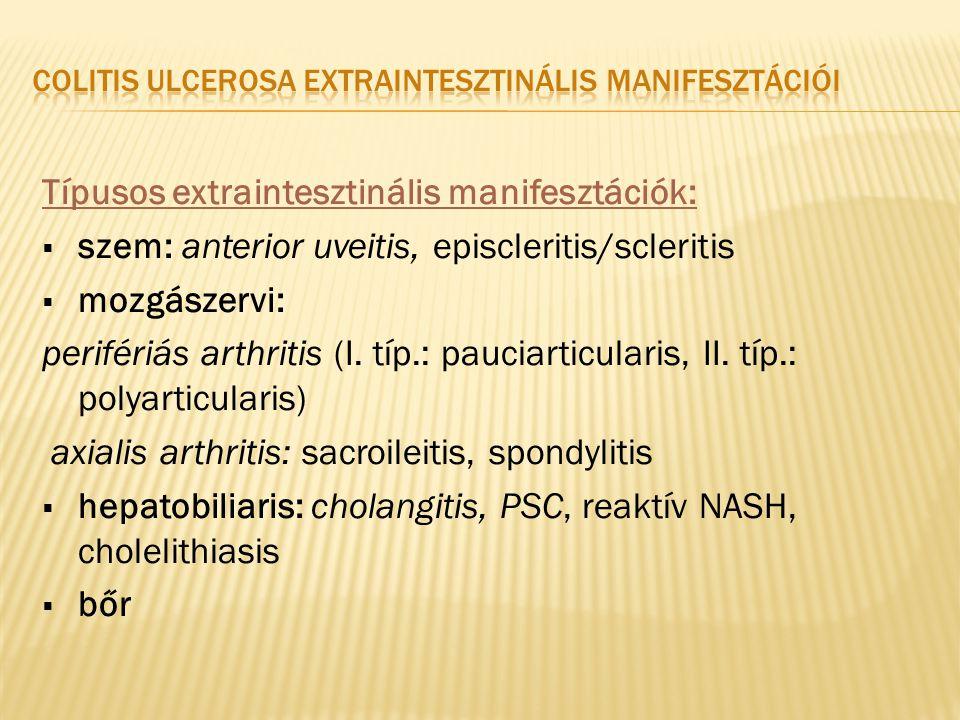 Típusos extraintesztinális manifesztációk:  szem: anterior uveitis, episcleritis/scleritis  mozgászervi: perifériás arthritis (I. típ.: pauciarticul