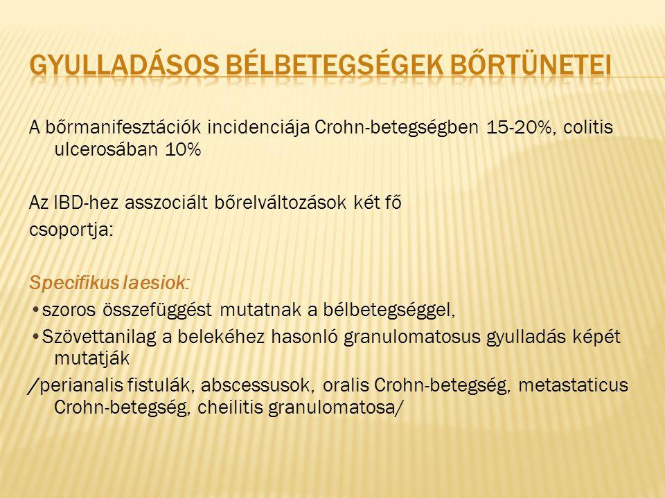 A bőrmanifesztációk incidenciája Crohn-betegségben 15-20%, colitis ulcerosában 10% Az IBD-hez asszociált bőrelváltozások két fő csoportja: Specifikus