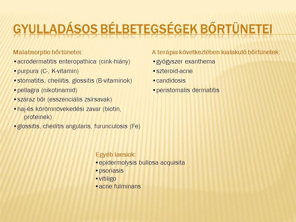 Malabsorptio bőrtünetei: acrodermatitis enteropathica (cink-hiány) purpura (C-, K-vitamin) stomatitis, cheilitis, glossitis (B-vitaminok) pellagra (ni
