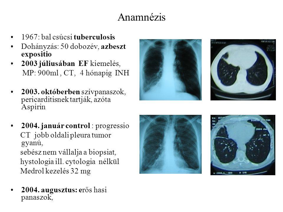 Anamnézis 1967: bal csúcsi tuberculosis Dohányzás: 50 dobozév, azbeszt expositio 2003 júliusában EF kiemelés, MP: 900ml, CT, 4 hónapig INH 2003. októb
