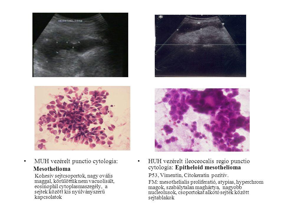 MUH vezérelt punctio cytologia: Mesothelioma Kohesiv sejtcsoportok, nagy ovális maggal, körülöttük nem vacuolisált, eosinophil cytoplasmaszegély, a se