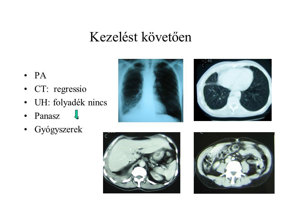 Kezelést követően PA CT: regressio UH: folyadék nincs Panasz Gyógyszerek