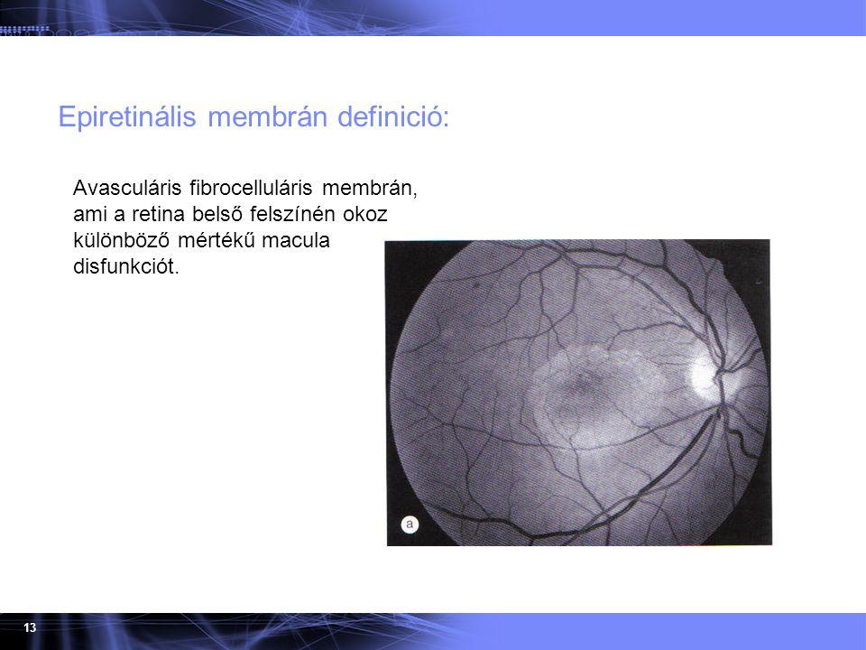 13 Epiretinális membrán definició: Time Avasculáris fibrocelluláris membrán, ami a retina belső felszínén okoz különböző mértékű macula disfunkciót.