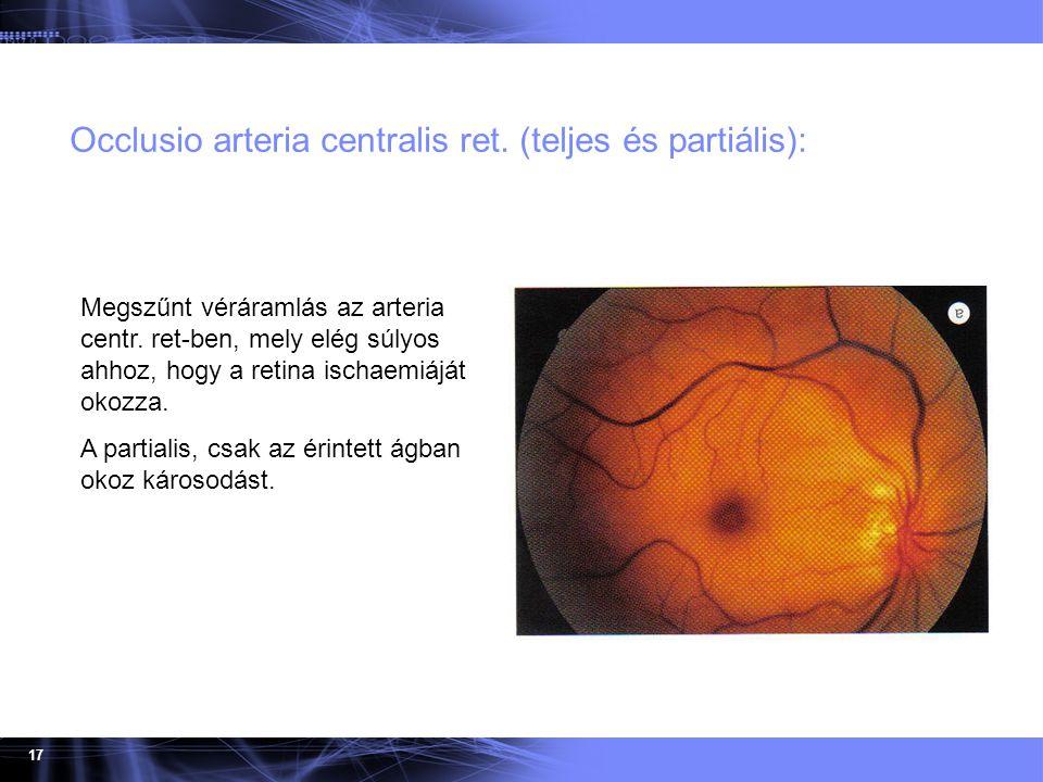 17 Occlusio arteria centralis ret. (teljes és partiális): Megszűnt véráramlás az arteria centr. ret-ben, mely elég súlyos ahhoz, hogy a retina ischaem