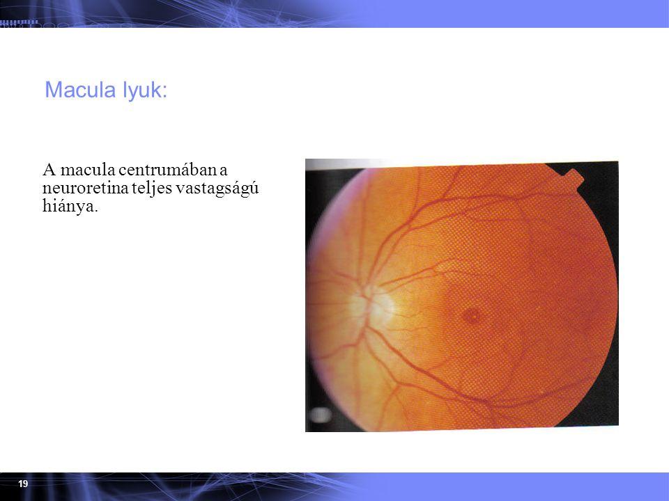 19 Macula lyuk: A macula centrumában a neuroretina teljes vastagságú hiánya.