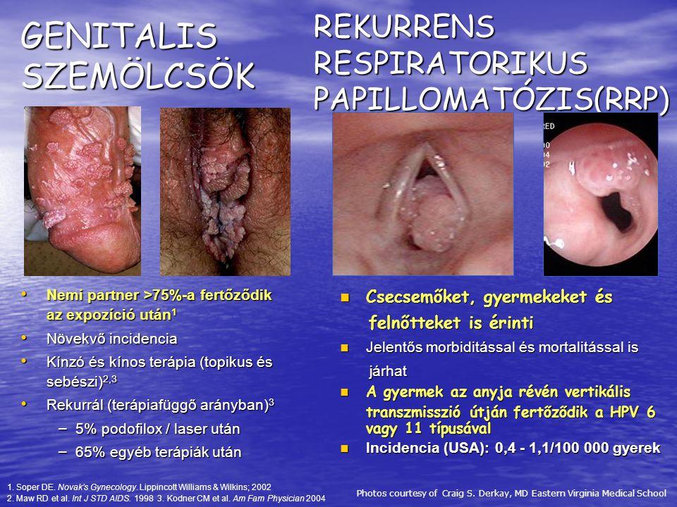 GENITALIS SZEMÖLCSÖK Nemi partner >75%-a fertőződik az expozíció után 1 Nemi partner >75%-a fertőződik az expozíció után 1 Növekvő incidencia Növekvő