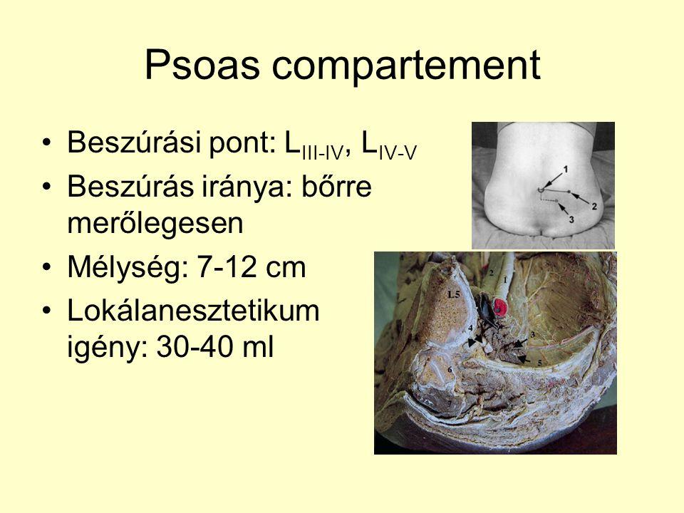 Psoas compartement Beszúrási pont: L III-IV, L IV-V Beszúrás iránya: bőrre merőlegesen Mélység: 7-12 cm Lokálanesztetikum igény: 30-40 ml