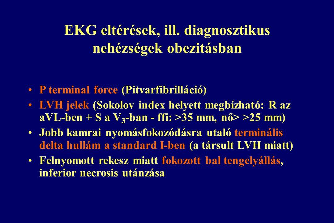EKG eltérések, ill.