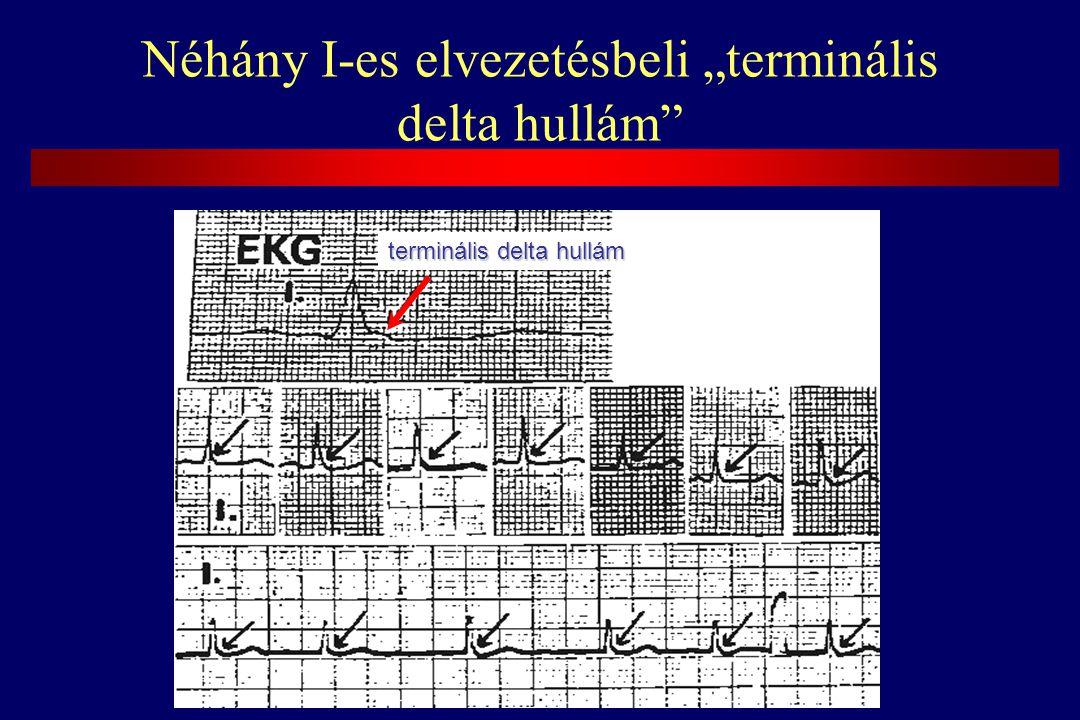 """Néhány I-es elvezetésbeli """"terminális delta hullám terminális delta hullám"""