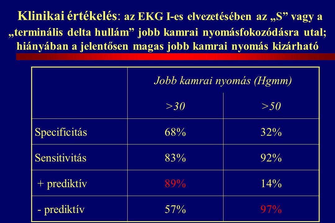 """Klinikai értékelés: az EKG I-es elvezetésében az """"S vagy a """"terminális delta hullám jobb kamrai nyomásfokozódásra utal; hiányában a jelentősen magas jobb kamrai nyomás kizárható Jobb kamrai nyomás (Hgmm) >30>50 Specificitás68%32% Sensitivitás83%92% + prediktív89%14% - prediktív57%97%"""