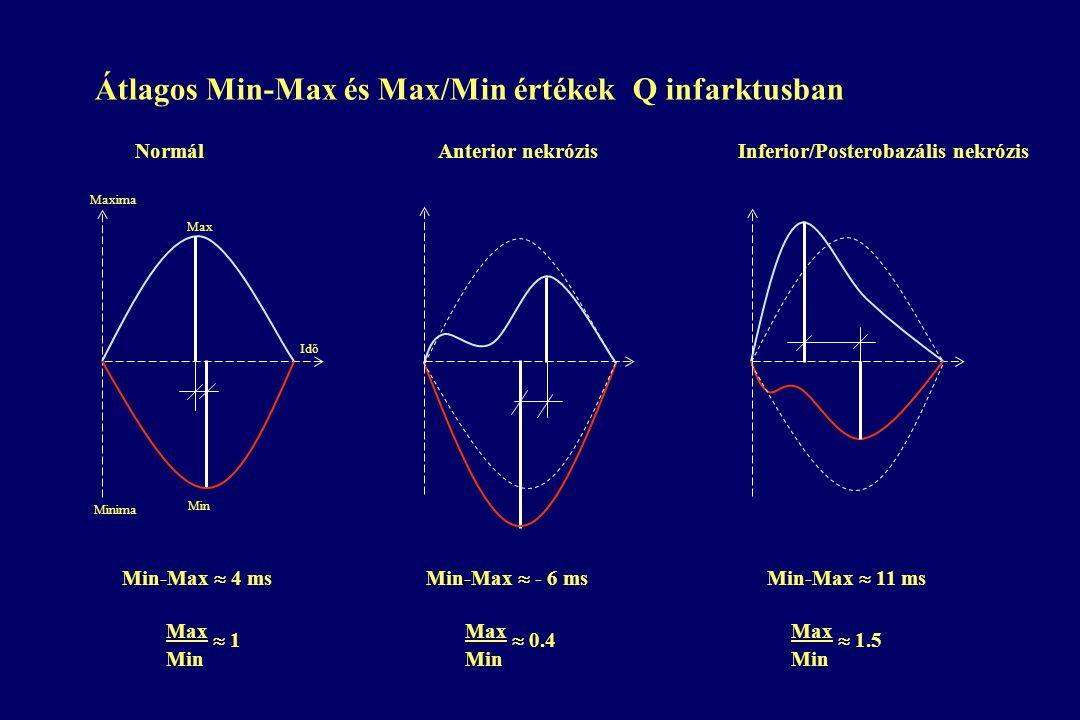 Min-Max  4 ms Min-Max  - 6 ms Min-Max  11 ms Normál Anterior nekrózis Inferior/Posterobazális nekrózis Minima Max  1 Min Max  0.4 Min Max  1.5 Min Max Min Maxima Idő Átlagos Min-Max és Max/Min értékek Q infarktusban