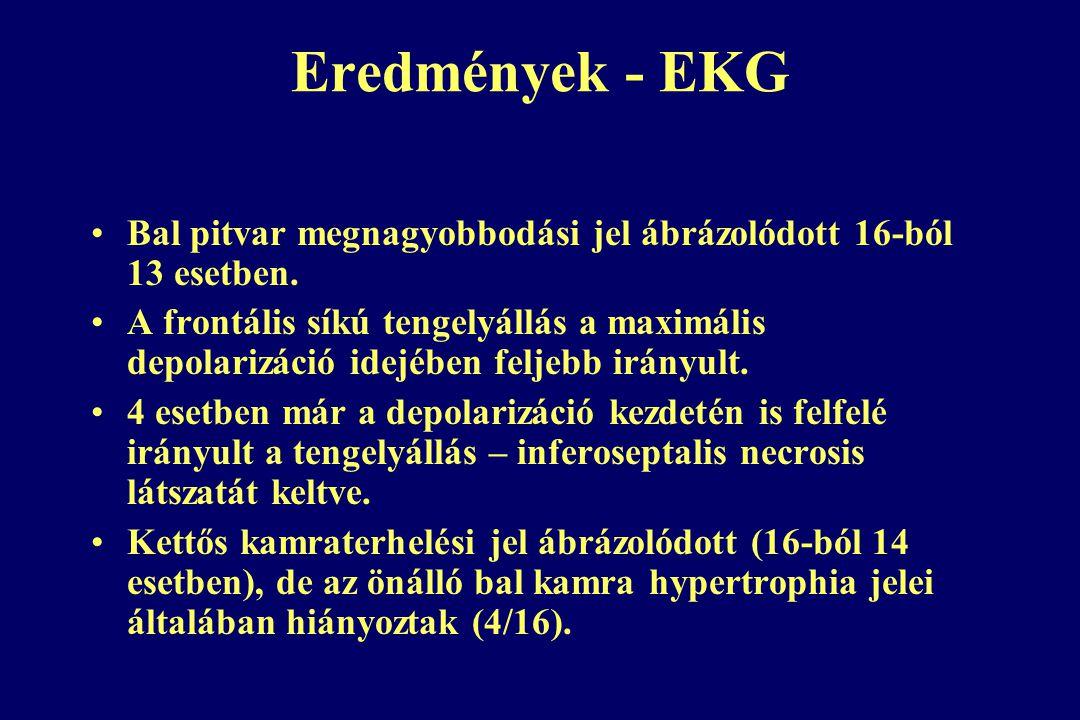 Eredmények - EKG Bal pitvar megnagyobbodási jel ábrázolódott 16-ból 13 esetben.