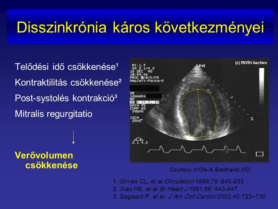 QRS idő (msec) <90 90-120 120-170 170-220 >220 Széles QRS – arányosan emelkedik a halálozás Vesnarinone Study (VEST study analysis) NYHA II-IV betegek 3,654 EKG Életkor, kreatinin, LVEF, HR és a QRS szélessége halálozás független prediktorai Relatív kockázat a legszélesebb QRS-ű csoportban ötszöröse a legkeskenyebbének Gottipaty V, Krelis S, et al.