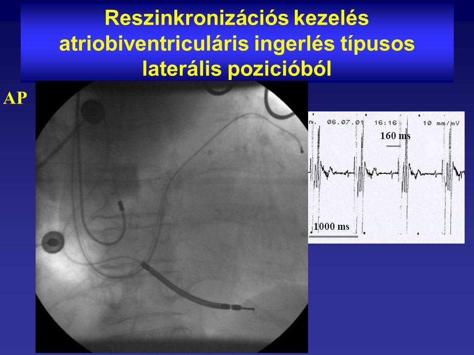 Reszinkronizációs kezelés atriobiventriculáris ingerlés típusos laterális pozicióból AP 1000 ms 160 ms