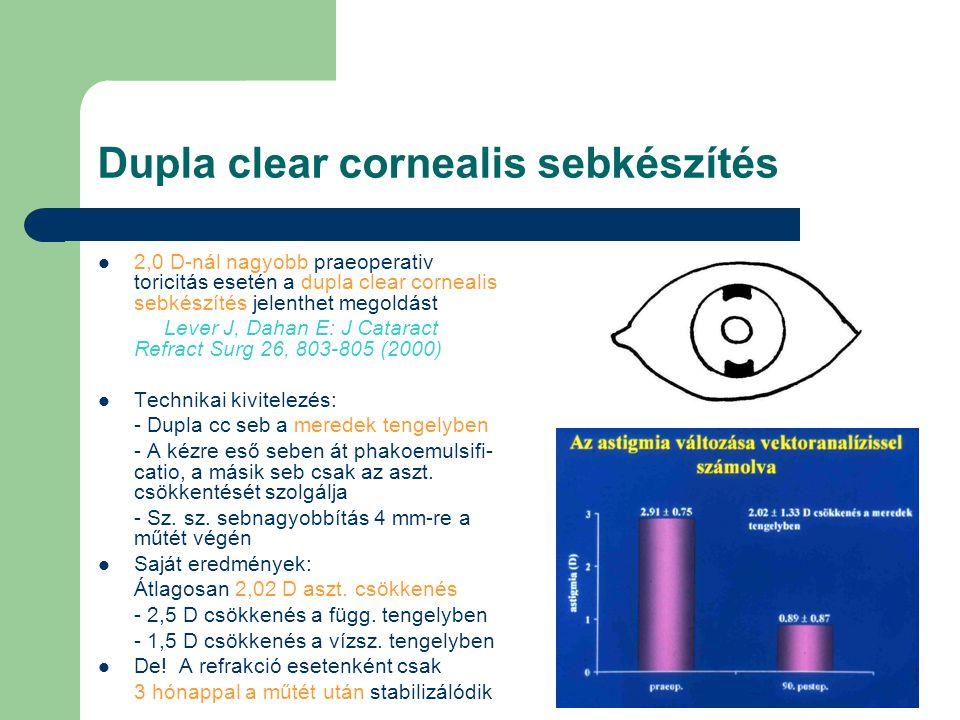 Pseudophakiás akkomodáció A sugártest kontrahál, tömege kissé hátrafelé helyeződik, ami miatt megnő az üvegtesti nyomás.