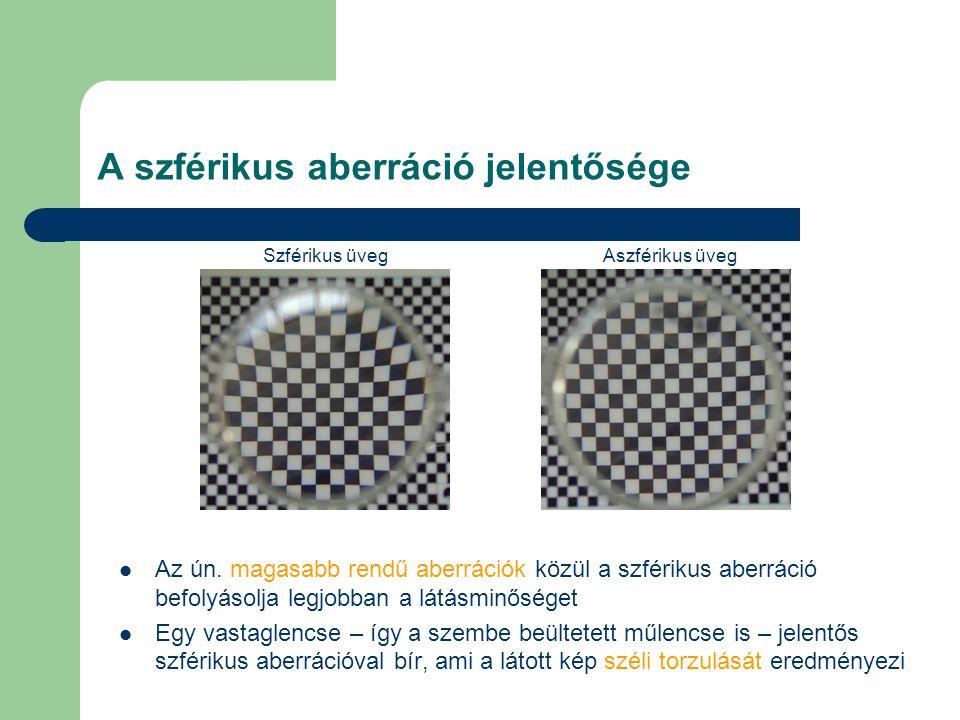 Két műlencse fotópiás kontrasztérzékenységé- nek összehasonlítása káprázáskor Acrysof műlencsével (Alcon) implantált betegek kontrasztérzékenységének vizsgálatát végeztük el fotópiás körülmények között, káprázást imitálva (2006) Egyik szembe az AcrySof műlencse szférikus, a másikba aszférikus változata került Magas pálcika sűrűségnél szign.