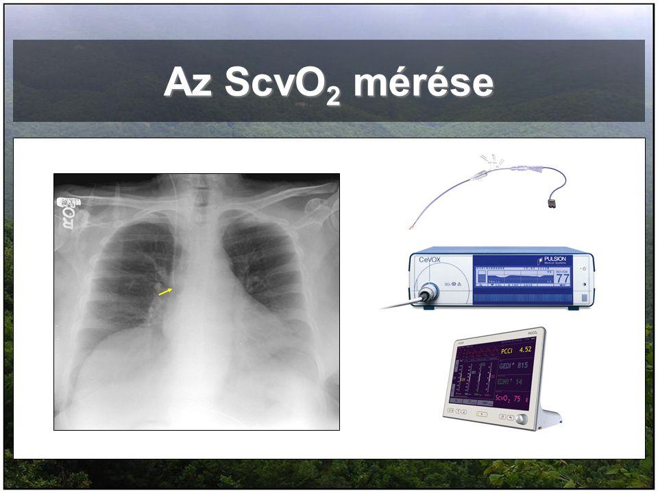 Az ScvO 2 mérése