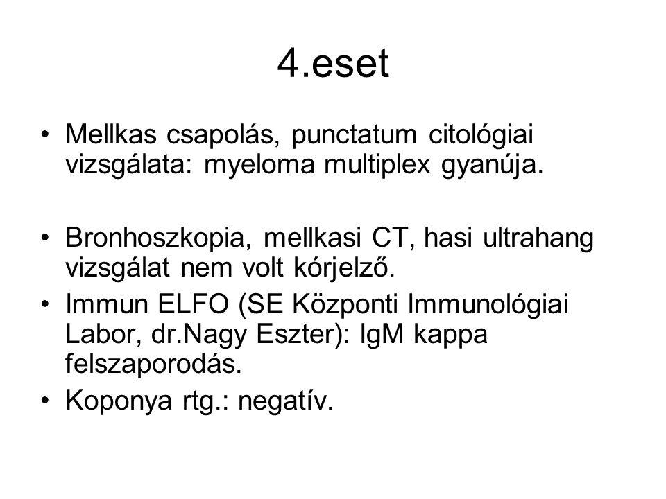 4.eset Mellkas csapolás, punctatum citológiai vizsgálata: myeloma multiplex gyanúja. Bronhoszkopia, mellkasi CT, hasi ultrahang vizsgálat nem volt kór