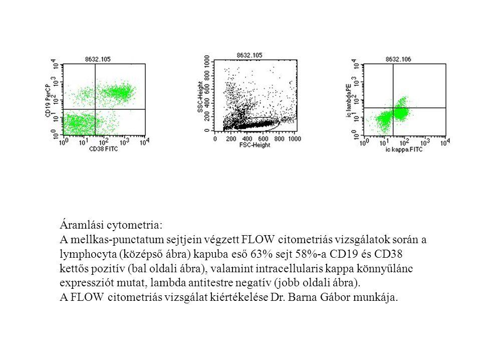 Áramlási cytometria: A mellkas-punctatum sejtjein végzett FLOW citometriás vizsgálatok során a lymphocyta (középső ábra) kapuba eső 63% sejt 58%-a CD1
