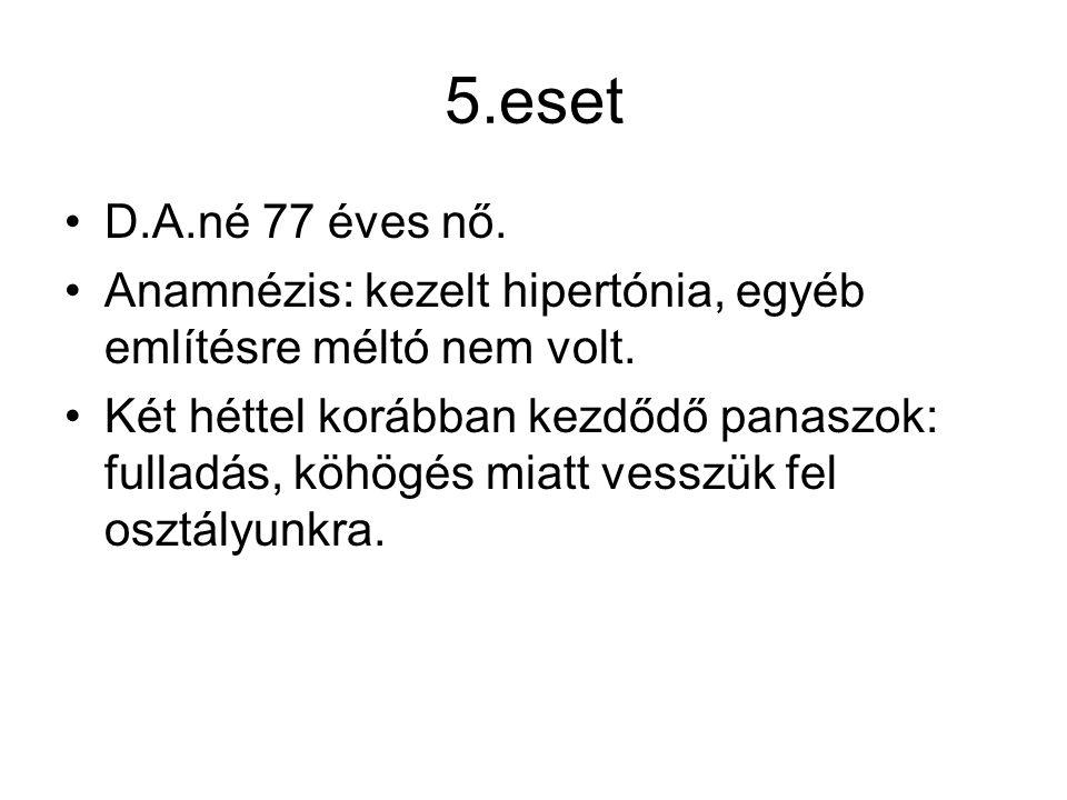 5.eset D.A.né 77 éves nő. Anamnézis: kezelt hipertónia, egyéb említésre méltó nem volt. Két héttel korábban kezdődő panaszok: fulladás, köhögés miatt