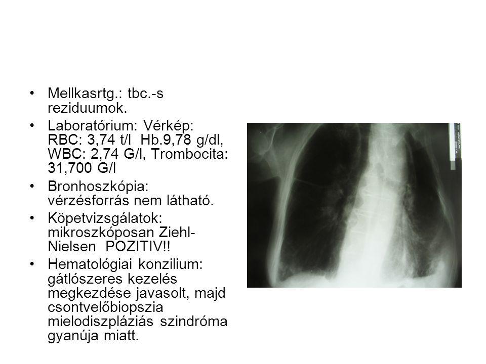 Mellkasrtg.: tbc.-s reziduumok. Laboratórium: Vérkép: RBC: 3,74 t/l Hb.9,78 g/dl, WBC: 2,74 G/l, Trombocita: 31,700 G/l Bronhoszkópia: vérzésforrás ne