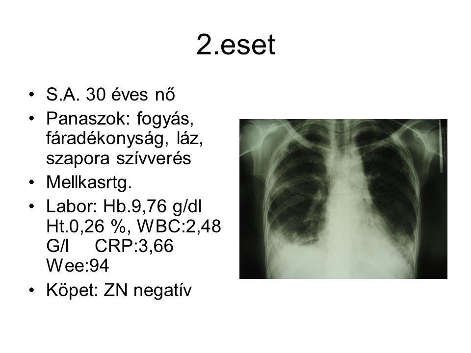2.eset S.A. 30 éves nő Panaszok: fogyás, fáradékonyság, láz, szapora szívverés Mellkasrtg. Labor: Hb.9,76 g/dl Ht.0,26 %, WBC:2,48 G/l CRP:3,66 Wee:94