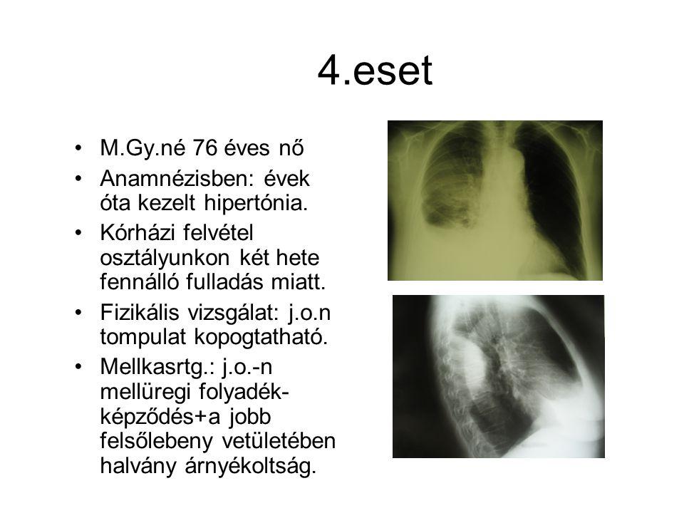4.eset M.Gy.né 76 éves nő Anamnézisben: évek óta kezelt hipertónia. Kórházi felvétel osztályunkon két hete fennálló fulladás miatt. Fizikális vizsgála