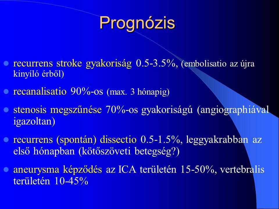 Prognózis recurrens stroke gyakoriság 0.5-3.5%, (embolisatio az újra kinyíló érből) recanalisatio 90%-os (max. 3 hónapig) stenosis megszűnése 70%-os g