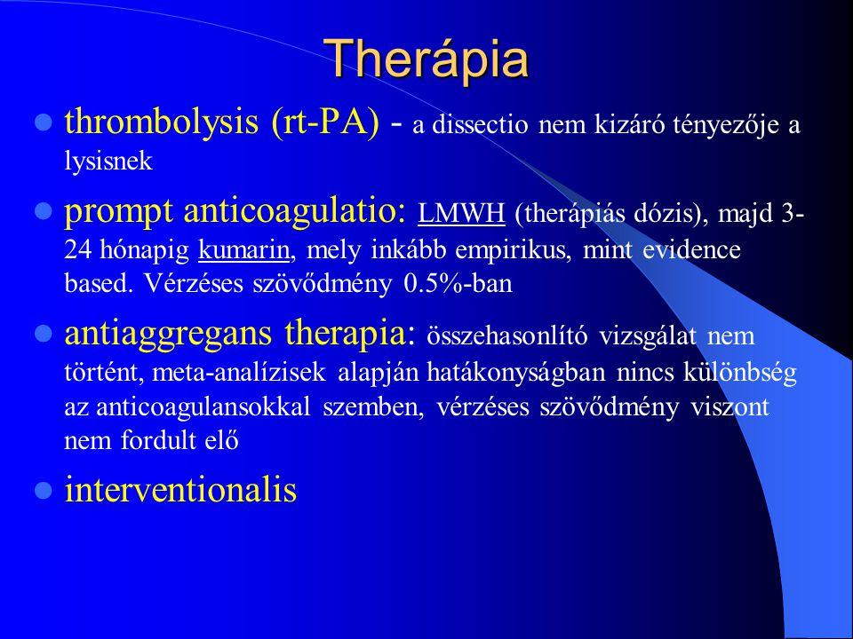 Therápia thrombolysis (rt-PA) - a dissectio nem kizáró tényezője a lysisnek prompt anticoagulatio: LMWH (therápiás dózis), majd 3- 24 hónapig kumarin,