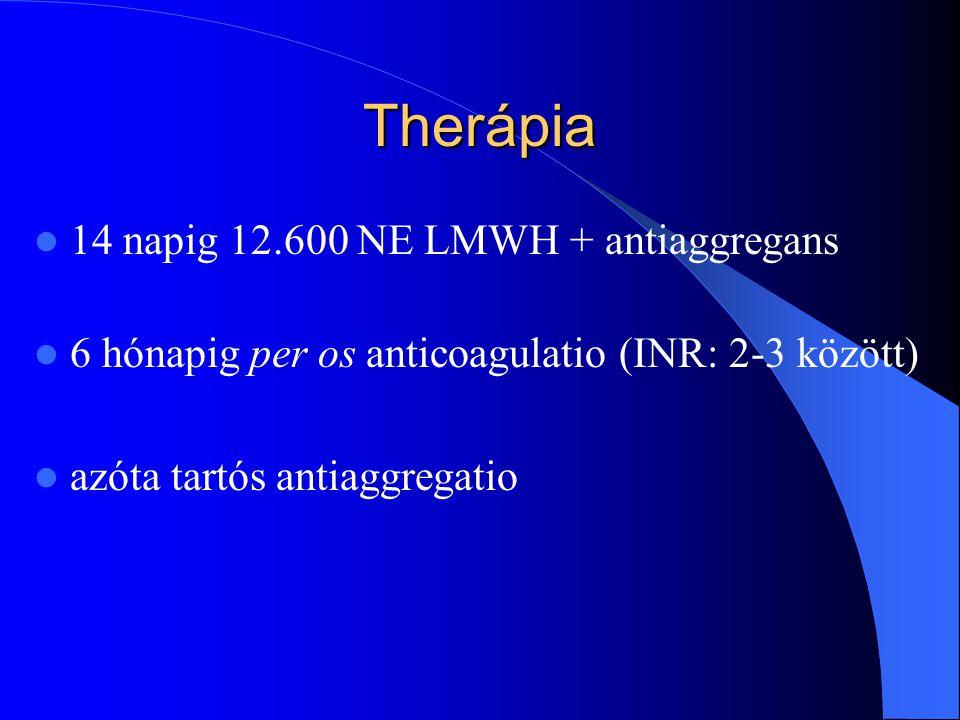 Therápia 14 napig 12.600 NE LMWH + antiaggregans 6 hónapig per os anticoagulatio (INR: 2-3 között) azóta tartós antiaggregatio