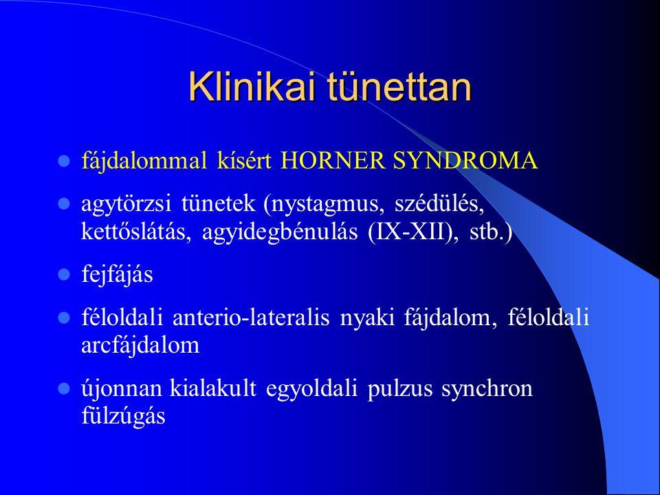 Klinikai tünettan fájdalommal kísért HORNER SYNDROMA agytörzsi tünetek (nystagmus, szédülés, kettőslátás, agyidegbénulás (IX-XII), stb.) fejfájás félo