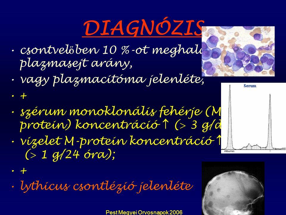 Pest Megyei Orvosnapok 2006 DIAGNÓZIS csontvel ő ben 10 %-ot meghaladó plazmasejt arány, vagy plazmacitóma jelenléte, + szérum monoklonális fehérje (M