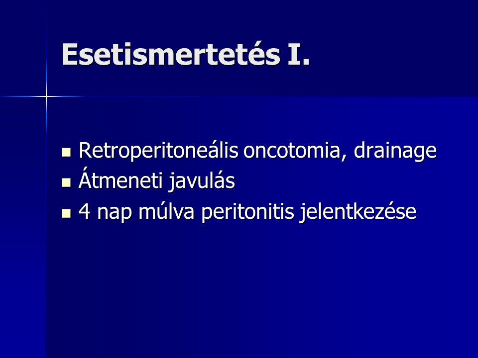 Esetismertetés I. Retroperitoneális oncotomia, drainage Retroperitoneális oncotomia, drainage Átmeneti javulás Átmeneti javulás 4 nap múlva peritoniti