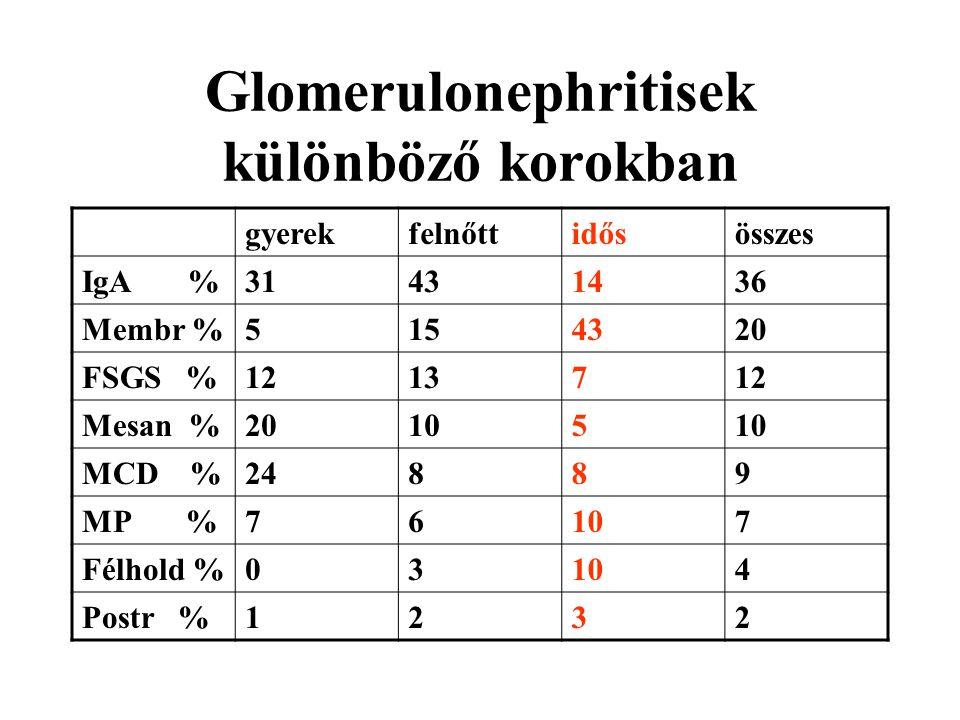Glomerulonephritisek különböző korokban gyerekfelnőttidősösszes IgA %31431436 Membr %5154320 FSGS %1213712 Mesan %20105 MCD %24889 MP %76107 Félhold %