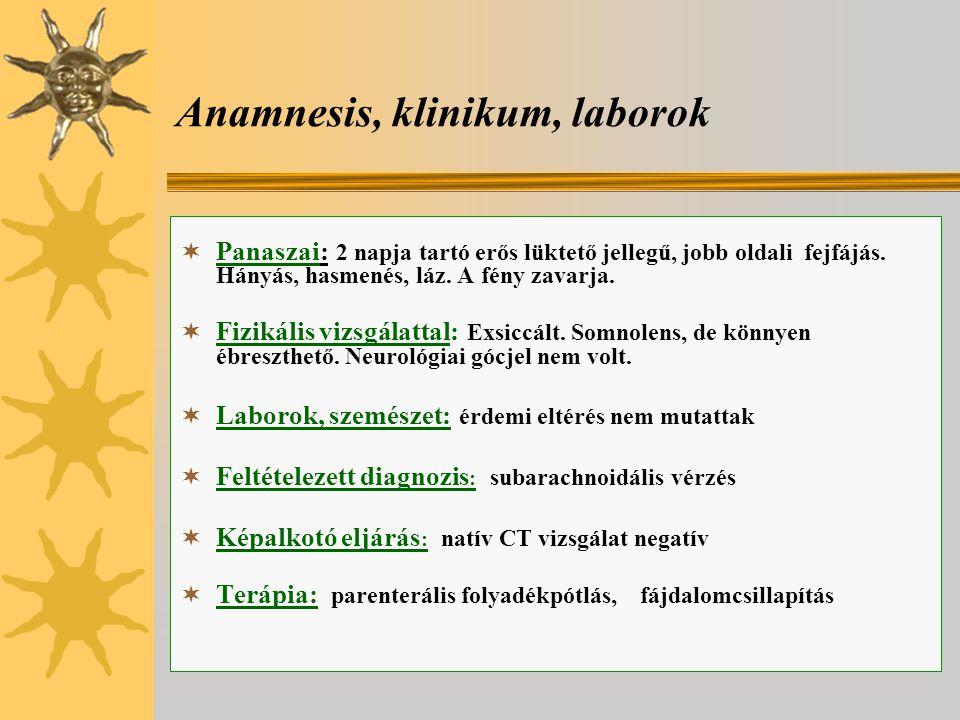 Anamnesis, klinikum, laborok  Panaszai: 2 napja tartó erős lüktető jellegű, jobb oldali fejfájás. Hányás, hasmenés, láz. A fény zavarja.  Fizikális