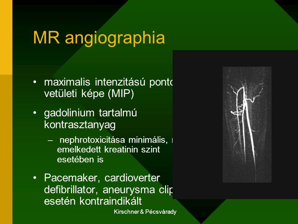 Kirschner & Pécsvárady MR angiographia maximalis intenzitású pontok vetületi képe (MIP) gadolinium tartalmú kontrasztanyag – nephrotoxicitása minimáli