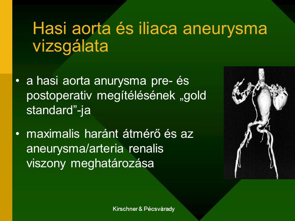 """Kirschner & Pécsvárady Hasi aorta és iliaca aneurysma vizsgálata a hasi aorta anurysma pre- és postoperativ megítélésének """"gold standard""""-ja maximalis"""