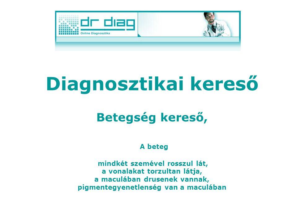 Diagnosztikai kereső Betegség kereső, mely ötleteket ad a lehetséges betegségek körére