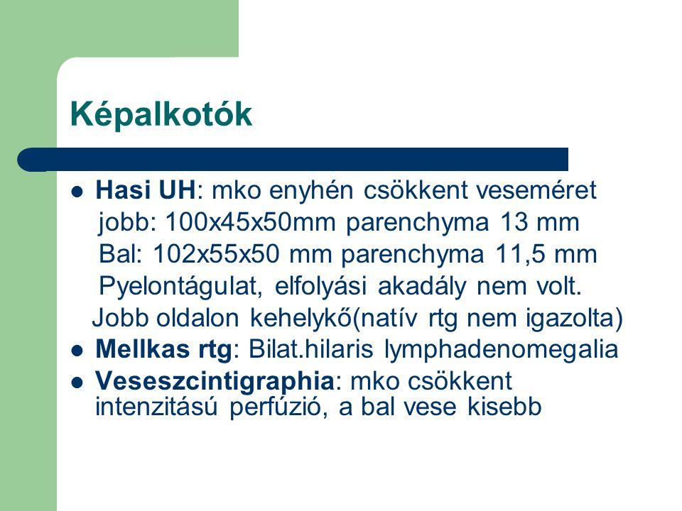 Képalkotók Hasi UH: mko enyhén csökkent veseméret jobb: 100x45x50mm parenchyma 13 mm Bal: 102x55x50 mm parenchyma 11,5 mm Pyelontágulat, elfolyási aka