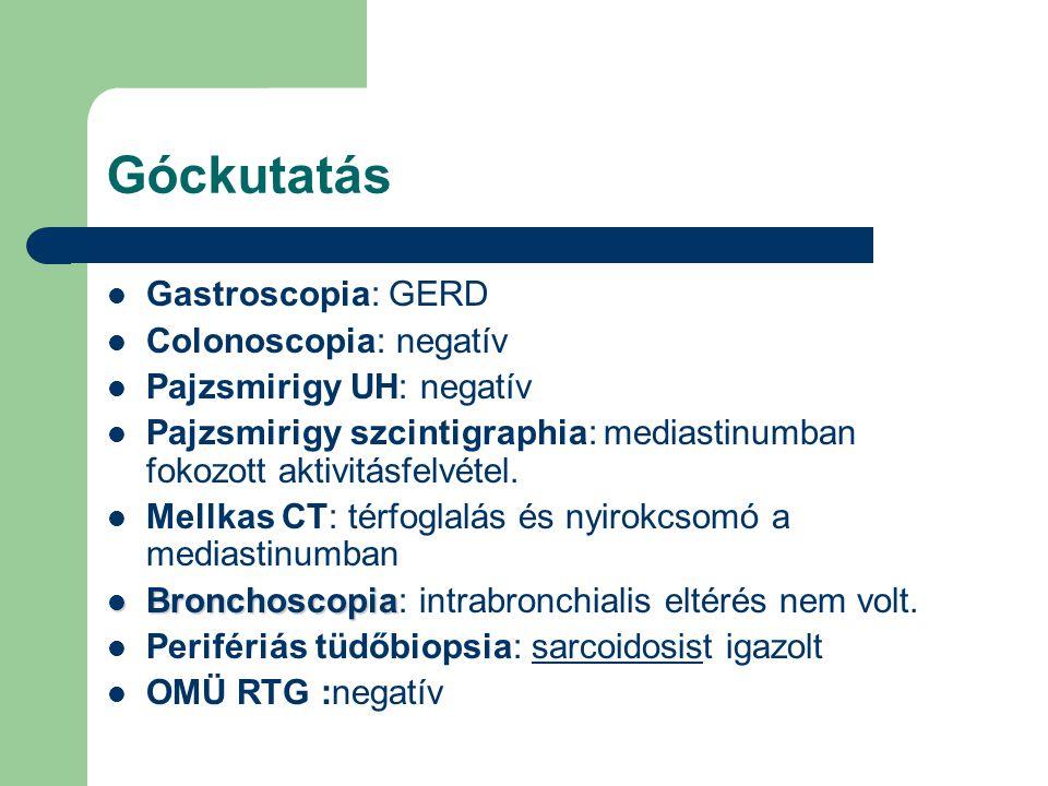 Góckutatás Gastroscopia: GERD Colonoscopia: negatív Pajzsmirigy UH: negatív Pajzsmirigy szcintigraphia: mediastinumban fokozott aktivitásfelvétel. Mel