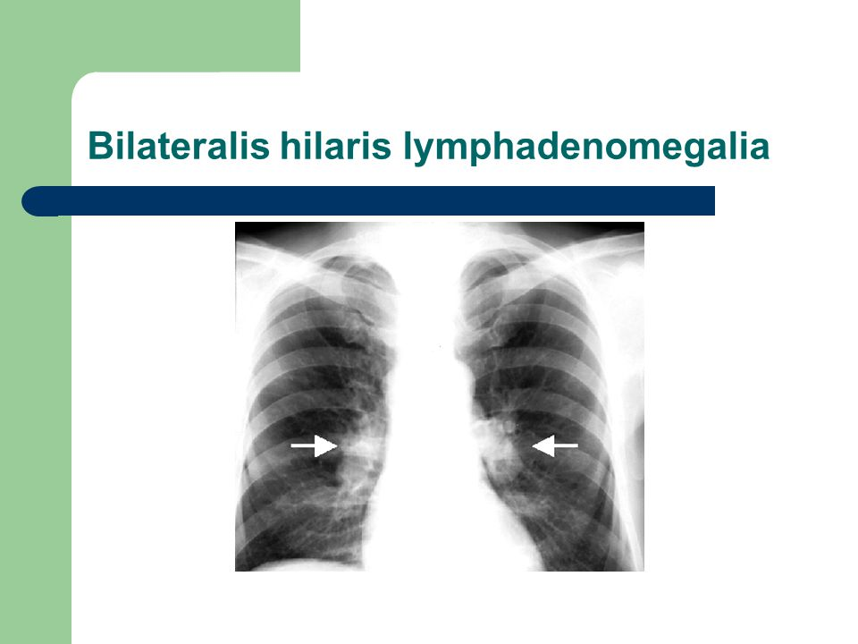 Bilateralis hilaris lymphadenomegalia