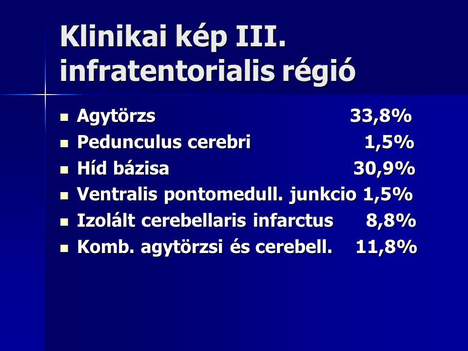 Klinikai kép III. infratentorialis régió Agytörzs 33,8% Agytörzs 33,8% Pedunculus cerebri 1,5% Pedunculus cerebri 1,5% Híd bázisa 30,9% Híd bázisa 30,