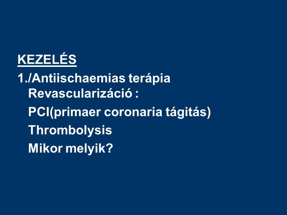 KEZELÉS 1./Antiischaemias terápia Revascularizáció : PCI(primaer coronaria tágitás) Thrombolysis Mikor melyik?