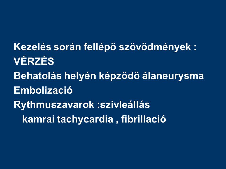 Kezelés során fellépö szövödmények : VÉRZÉS Behatolás helyén képzödö álaneurysma Embolizació Rythmuszavarok :szivleállás kamrai tachycardia, fibrillació