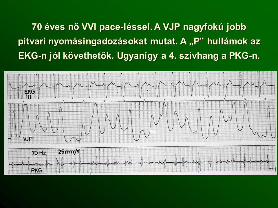 70 éves nő VVI pace-léssel.A VJP nagyfokú jobb pitvari nyomásingadozásokat mutat.