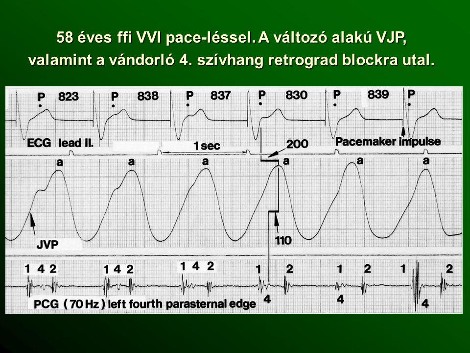 58 éves ffi VVI pace-léssel.A változó alakú VJP, valamint a vándorló 4.