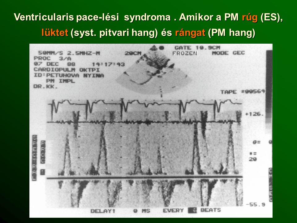 Ventricularis pace-lési syndroma.Amikor a PM rúg (ES), lüktet (syst.