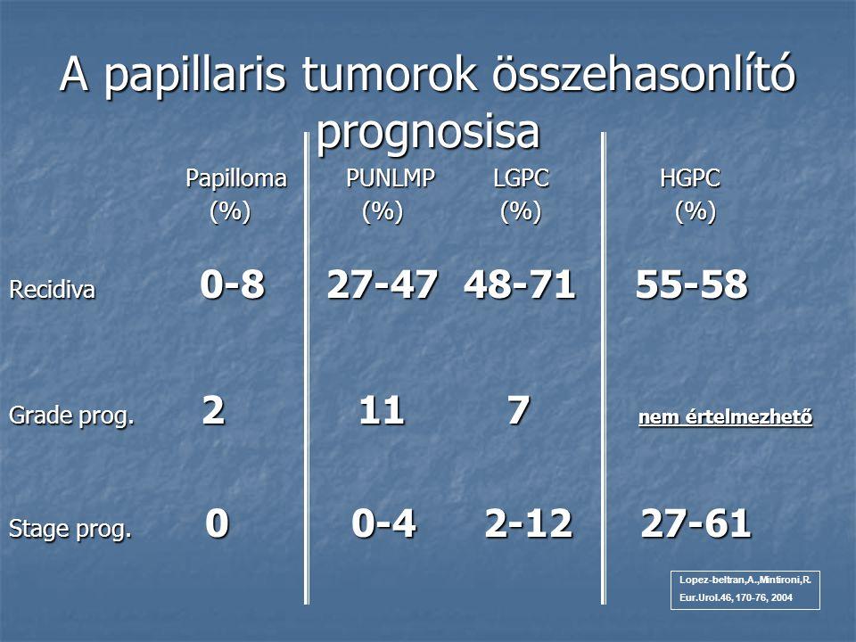 A papillaris tumorok összehasonlító prognosisa Papilloma PUNLMP LGPC HGPC Papilloma PUNLMP LGPC HGPC (%) (%) (%) (%) (%) (%) (%) (%) Recidiva 0-8 27-4