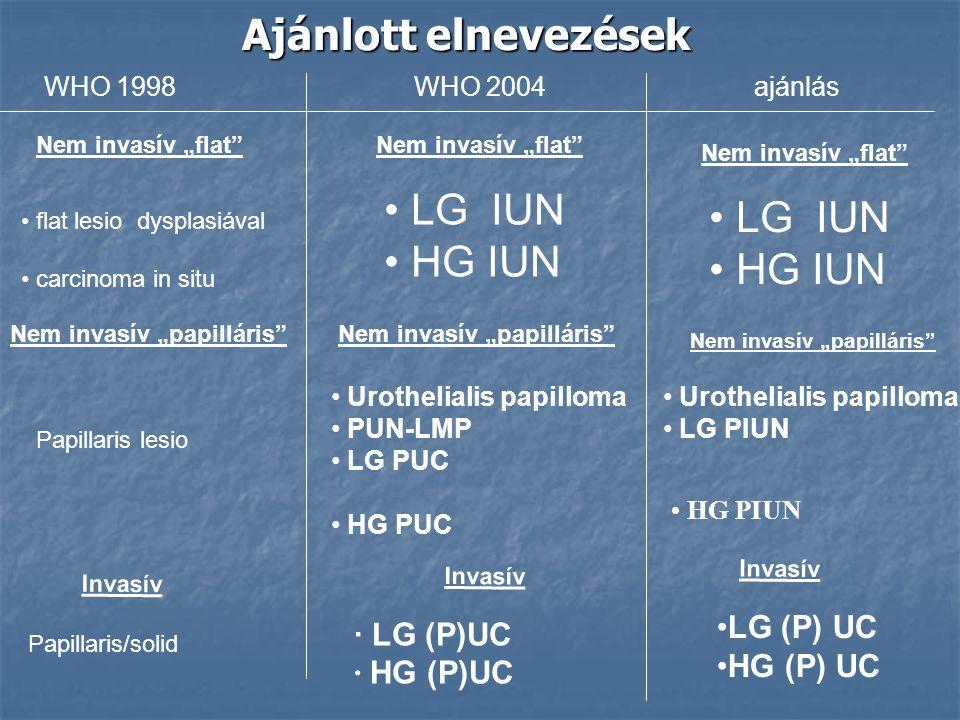 Ajánlott elnevezések WHO 1998WHO 2004ajánlás flat lesio dysplasiával carcinoma in situ Papillaris lesio LG IUN HG IUN Urothelialis papilloma PUN-LMP L