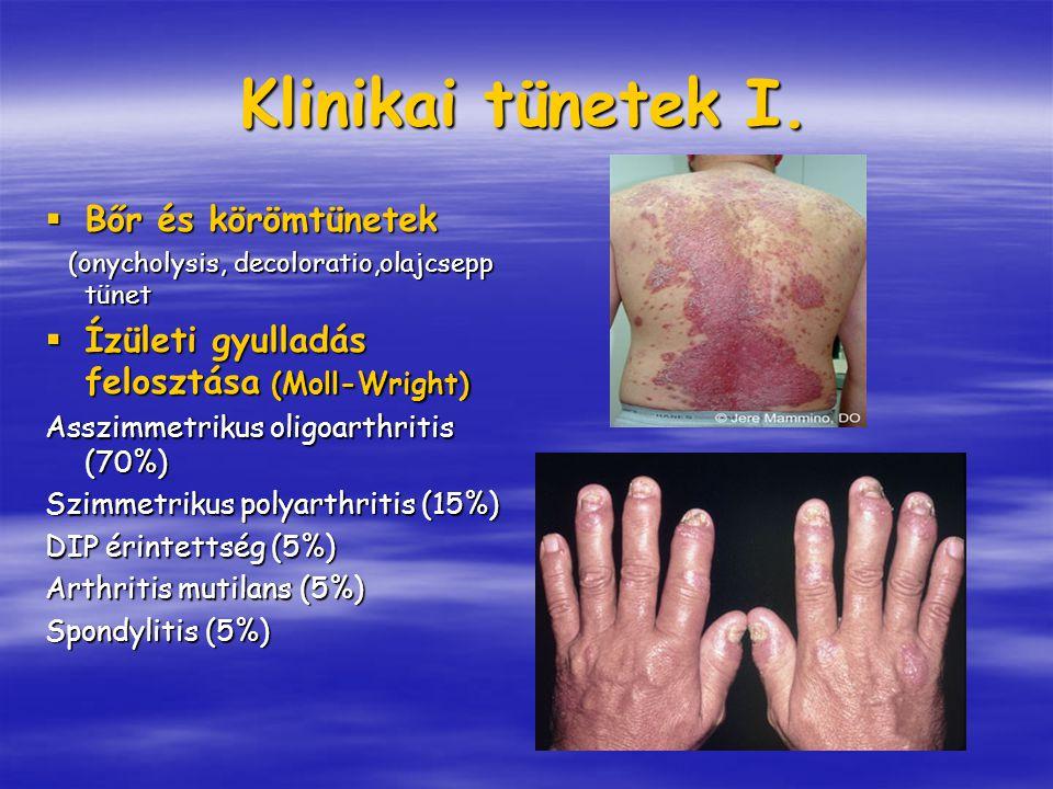 Klinikai tünetek I.  Bőr és körömtünetek (onycholysis, decoloratio,olajcsepp tünet (onycholysis, decoloratio,olajcsepp tünet  Ízületi gyulladás felo